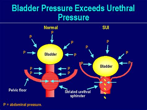 can dietretics cause bladder problems burning picture 9