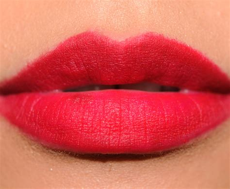 abnormal lips picture 11