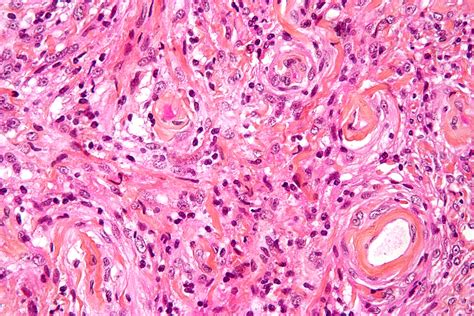 angiosarcoma of the liver picture 2