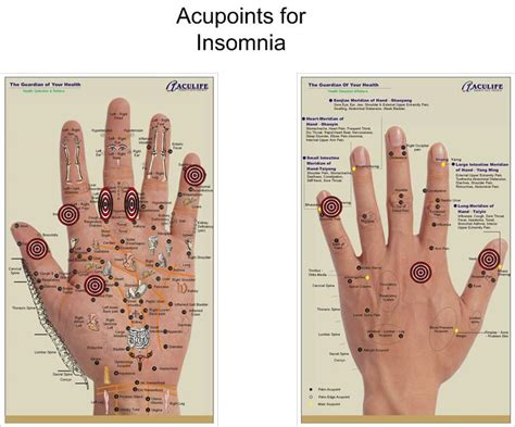 acupuncture and insomnia picture 21