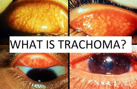 trangkaso symptoms picture 10