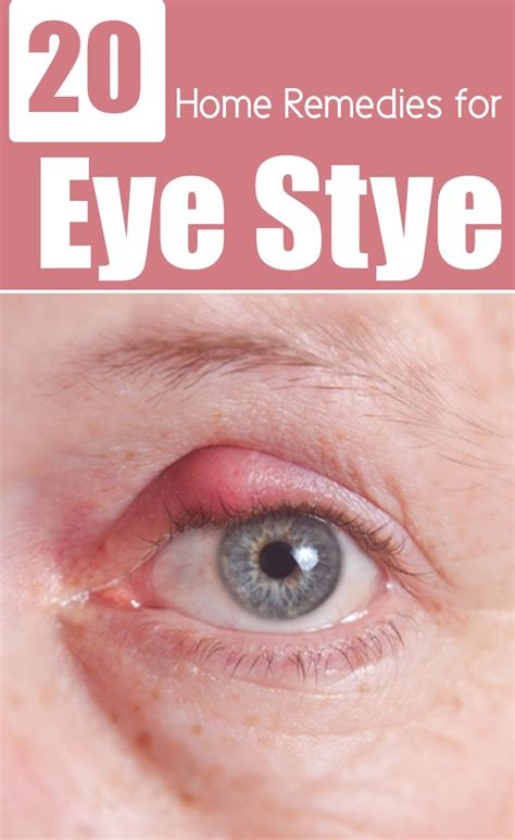 aayurvedic treatment for eyelid wart picture 10