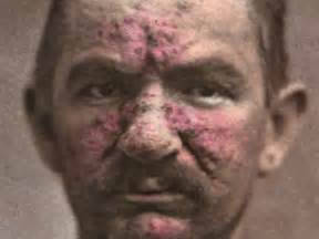 rosacea and mites picture 9