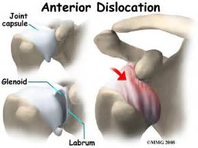 dislocation of a joint picture 21