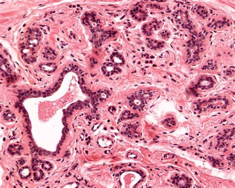 inactive thyroid glands picture 10