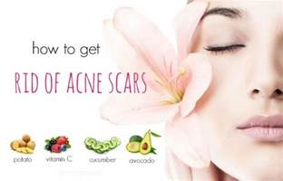 how to get rid of acne spots picture 6