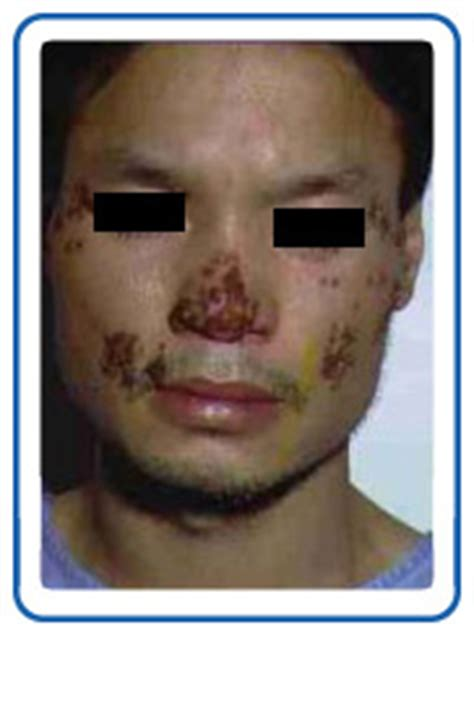 admedus herpes cure picture 15