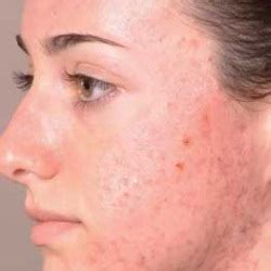 homemade acne cures picture 6
