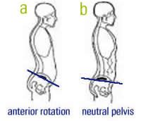 what are the symptoms of a tight pelvic picture 11