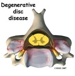 cream for degenerative spine disease picture 9
