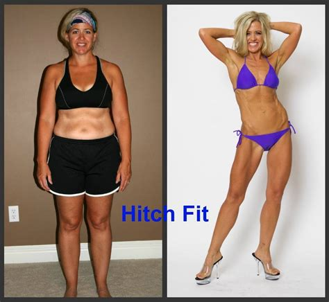 average weight loss after a tummy tuck and picture 6