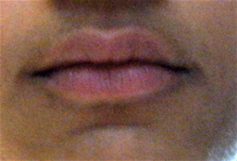 what are dark spots above lip line in picture 5