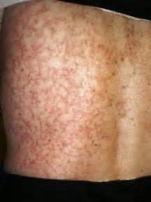 get rid of blotchy skin picture 9