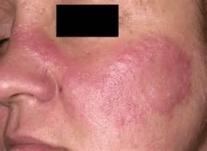 rash in folds of skin and pleurodynia picture 1