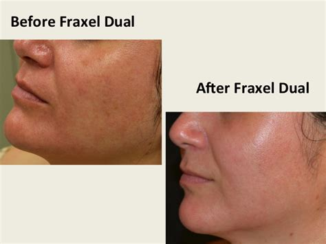 fraxel dual laser therapy acne scar removal medical picture 7