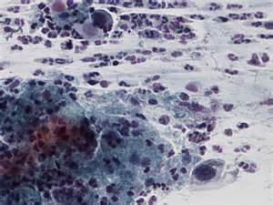 ascus yeast infection picture 7