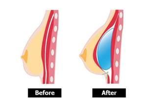 breast enlargement fenugreek picture 15
