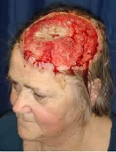 alternative skin cancer treatment picture 5