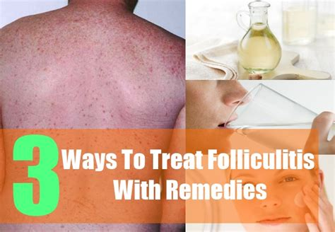 folliculitis home remedy picture 6