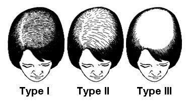 thrombophilia hair loss picture 9
