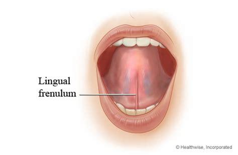 cut penis frenulum picture 10