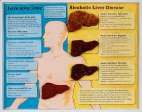 catalase in alcoholic liver cirrhosis picture 14