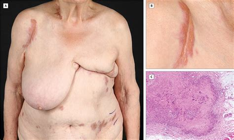 dx code for erythema breast picture 3