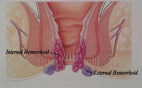 hemorrhoid relief remedies picture 10