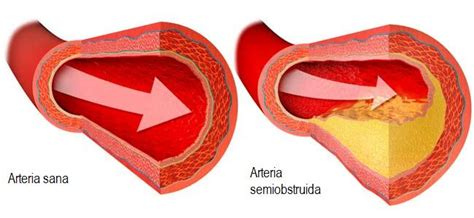 Does exercise affect cholesterol picture 14