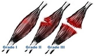 muscle tendon tears picture 13