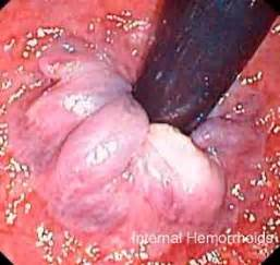 hemorrhoid prolapse picture 10