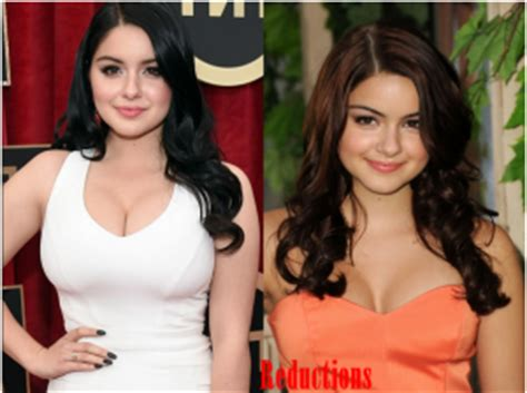 did ariel winter get breast implants picture 3