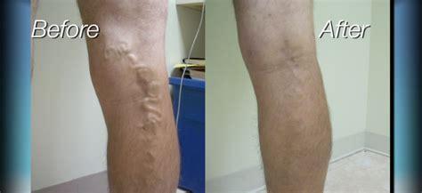 az vein skin rejuvenation picture 13