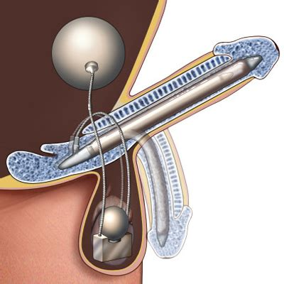 erectile dysfunction surgery picture 3