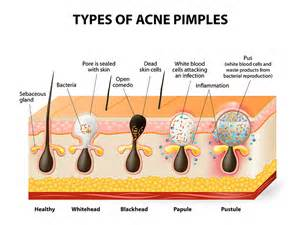 endocrine acne disorders picture 2
