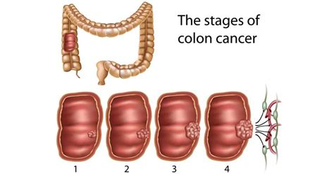 colon cancer definition picture 2