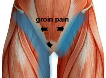 groin muscle pull picture 1