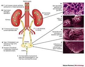 bladder infection symptoms picture 6
