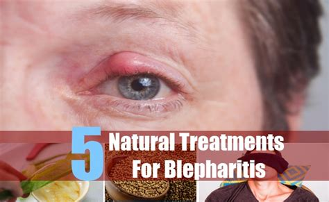 aayurvedic treatment for eyelid wart picture 18