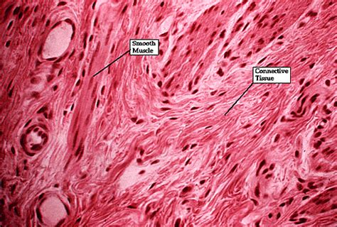 connective tissue disorder smooth muscle picture 3
