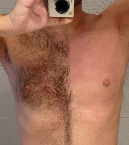 genital hair removal for men picture 2