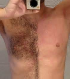 male pubic hair removal picture 2