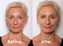 umoris svelme anti wrinkle solution picture 3