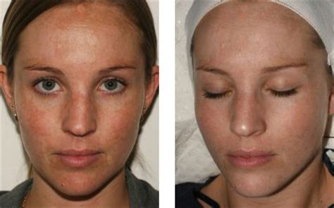 salicylic acid for removal of dark spot on picture 8