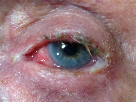 bacterial conjunctivitis picture 5