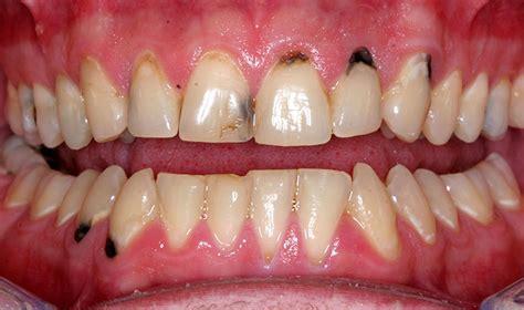 drug ruin teeth picture 18