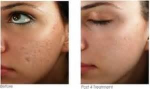 can you have a shower after dermapen treatment picture 6
