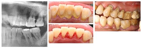 calcium loss in teeth picture 3