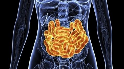 intestinal infections picture 7