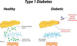 where can i buy dbx-13 for diabetes picture 1